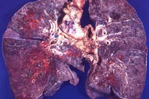 Схема лечения кандидоза легких