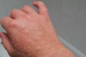 Холодовая крапивница фото