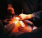 Невнимательность врачей: почку пересадили, но не тому больному